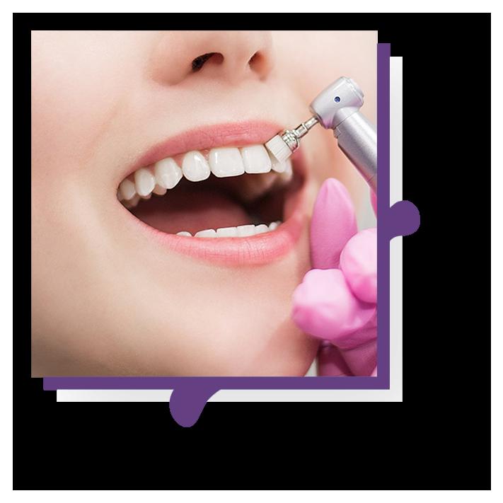 Teeth whitening services in Tulsa, OK